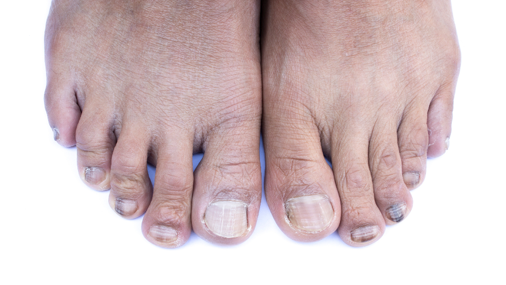toenail infections