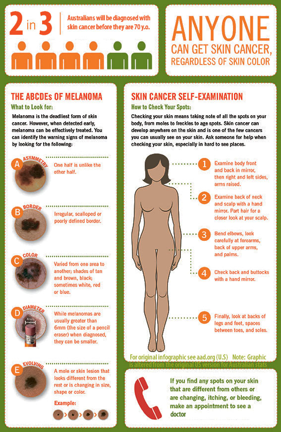 skin_cancer_checklist_infographic