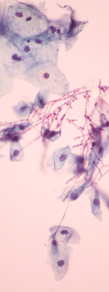 Candida - microscopic view